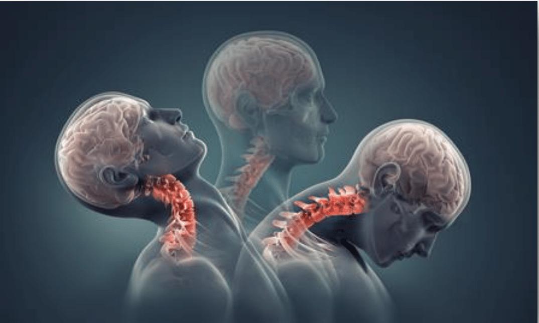Corrective Chiropractic_chiropractor bee caves_best chiropractor austin