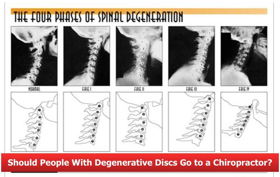 Degenerative Discs_Chiropractor Austin_corrective chiropractic bee caves TX
